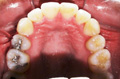Extraction of Three teeth, Two Upper First Bicuspids & Lower One Incisor