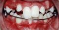 after braces photos
