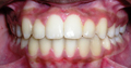 braces pictures