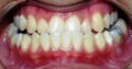 Patient CC: Lower jaw was brought backward along with orthodontic treatment.
