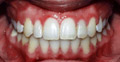 Patient CG: Upper jaw was brought forward along with orthodontic treatment.