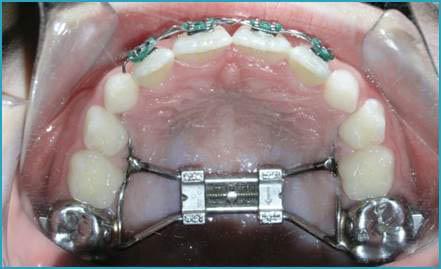 My Orthodontic Expander Made a Huge Gap Between My Teeth