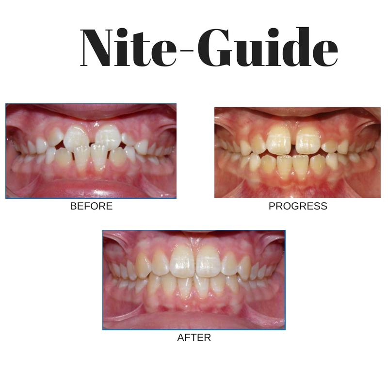 Nite-Guide BLOG3